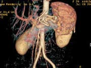 Grafik Computertomographie